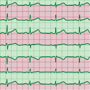 candy cane EKG
