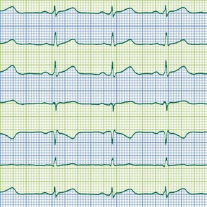 EKG:  a chevron from the heart