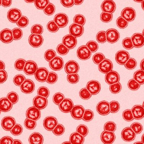 04645901 © necrotising fasciitis - Streptococcus pyogenes : R