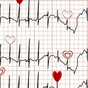 Azucena's Heart